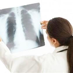 Лечение хронической обструктивной болезни легких
