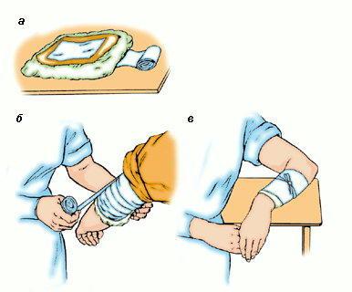 Как сделать водочный компресс на прививку