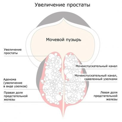 Prostatavergroesserung2-ru